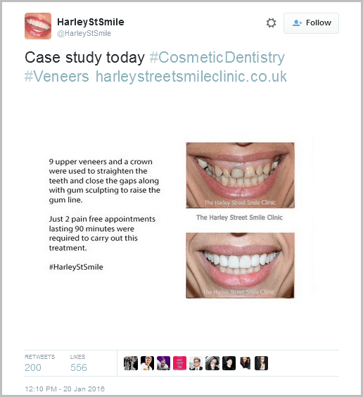 Case Study Tweet